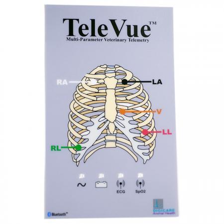 Medical machine graphic overlay - Medical use overlay