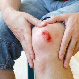 Skin - Wound aids