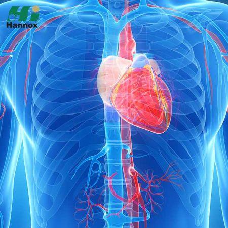 Cardiovascular & Metabolism Products - Cardiovascular & Metabolism