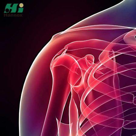 Orthopedics Products