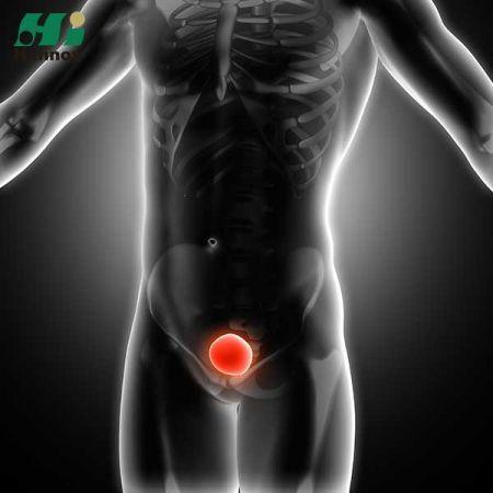 Urology Products - Urology