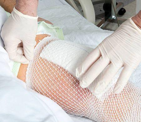 Bandage en filet tubulaire